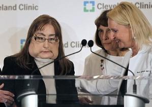 Конни Калп: первая женщина, пережившая пересадку лица